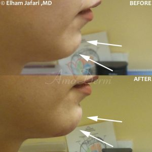 Chin Augmentation - Before & After Gallery Real Results at Amoderm