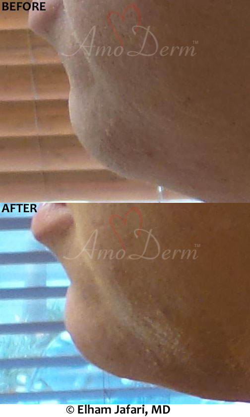 Chin Augmentation using dermal fillers like bellafill, radiesse or juvederm voluma