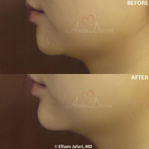Nonsurgical chin augmentation and enhancement