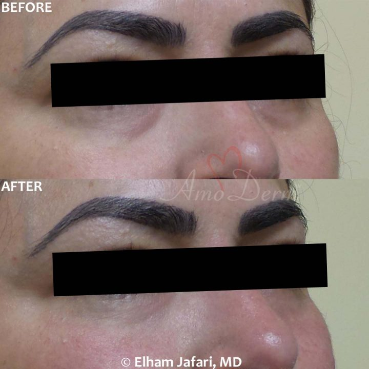 Dark Circles Under Eyes: Before & After Gallery from Amoderm