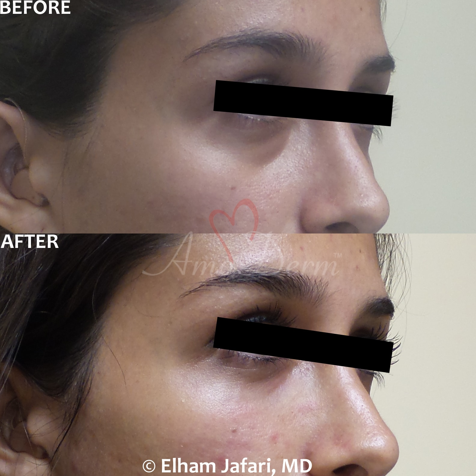 Treatment of dark circles under eyes using micro-cannula technique