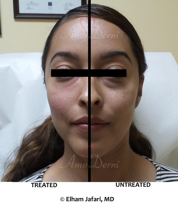 Nonsurgical treatment of dark circles, bags and hollows under the eyes as part of Liquid (nonsurgical) Facelift