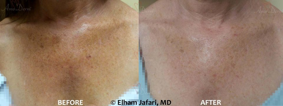 Erbium: Before & After Gallery from Amoderm