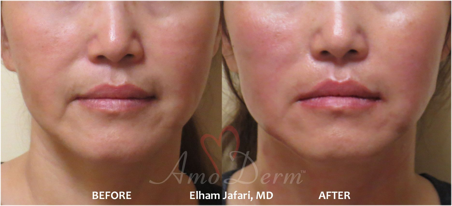 Thread Lift Non Surgical Cosmetic Procedure In Irvine