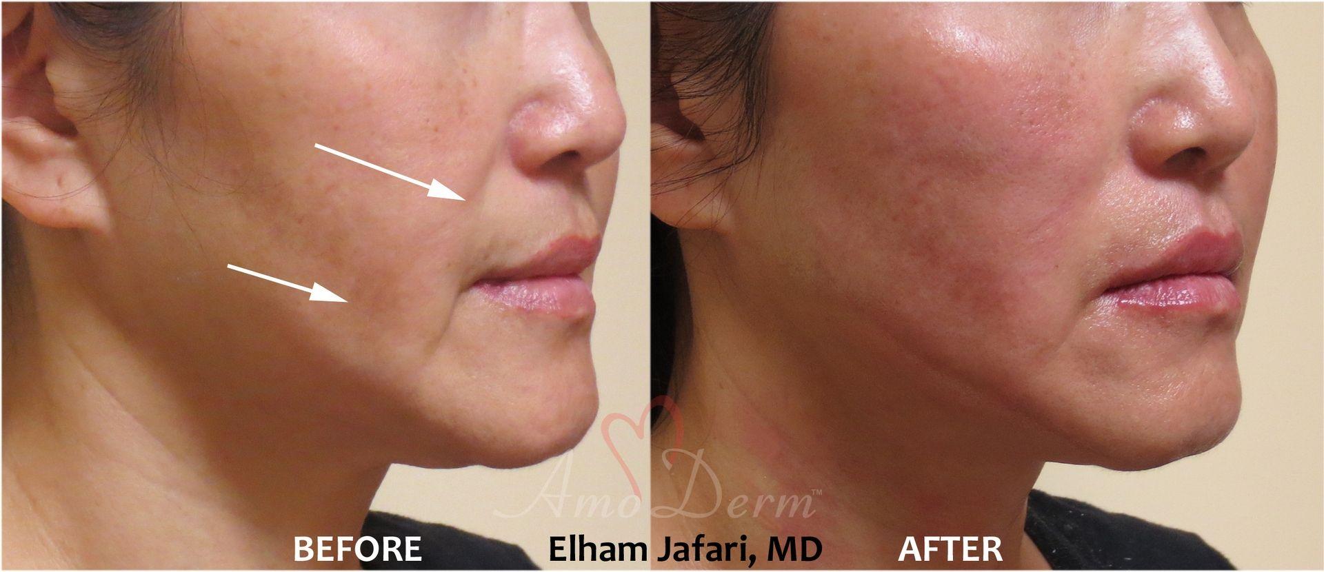 Thread Lift - Non-surgical Cosmetic Procedure in Irvine