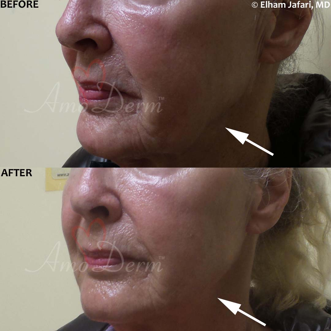 Liquid facelift with filler injection in cheeks & jawline (non-surgical jaw lift) with Juvederm, Voluma, Radiesse or Bellafill