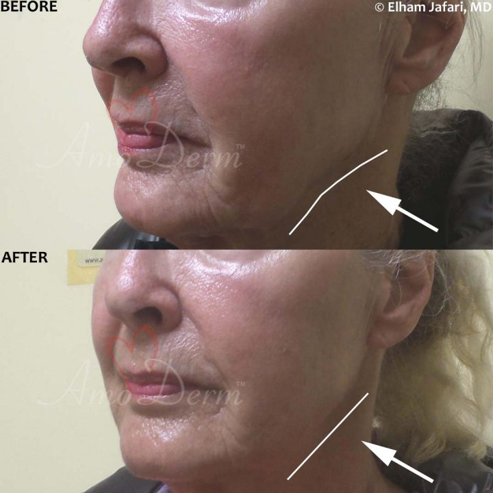 Liquid facelift with filler injection in cheeks & jawline (nonsurgical jaw lift) with Juvederm, Voluma, Radiesse or Bellafill