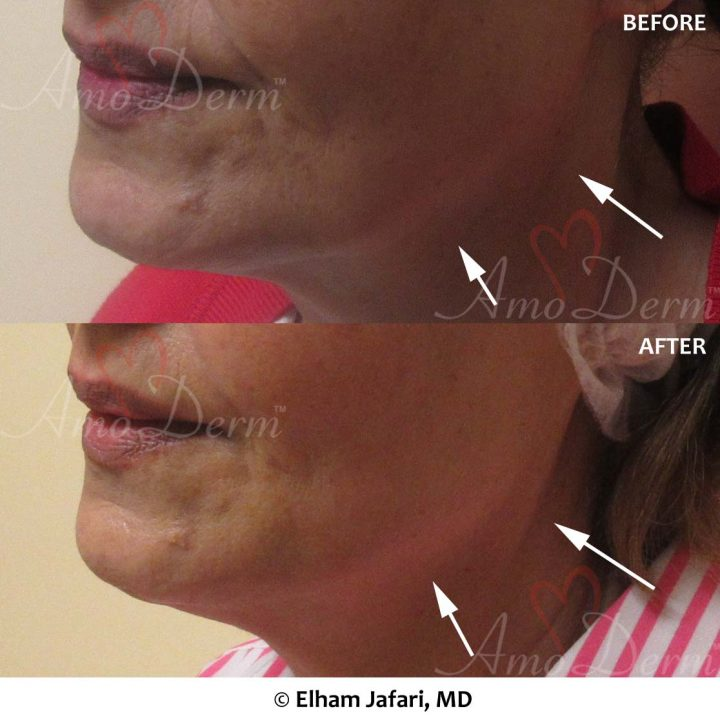 Jaw and Neck Lift
