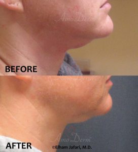 Non surgical & permanent reduction of double chin (excessive submental fat) with Kybella