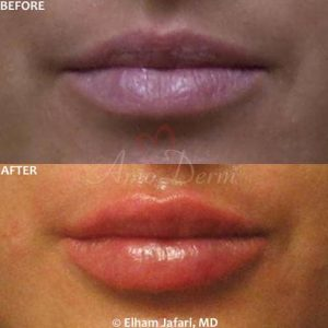 Lip augmentation with hyaluronic acid filler