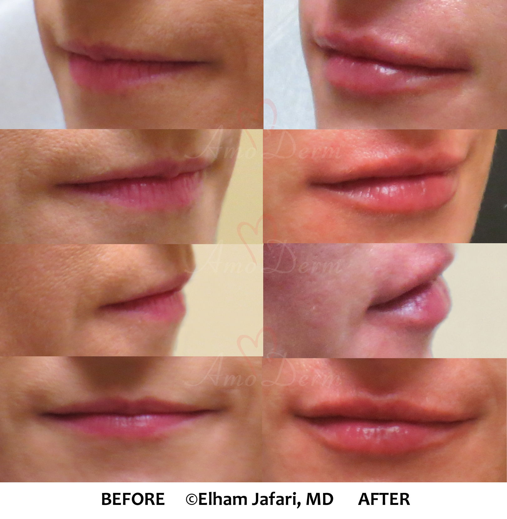 Amoderm : Before & After Gallery