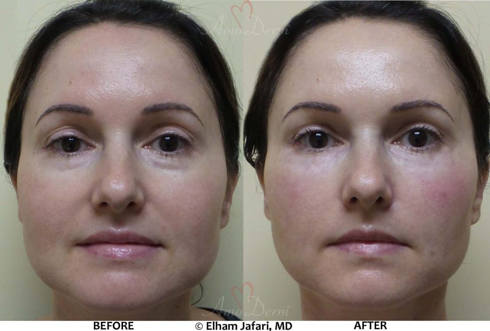 Liquid Facelift