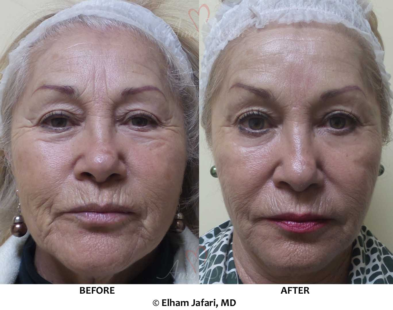 Liquid Facelift & Brow Lift with Botox (or Dysport or Xeomin) in forehead, crow's feet & around mouth (smoker's lines)