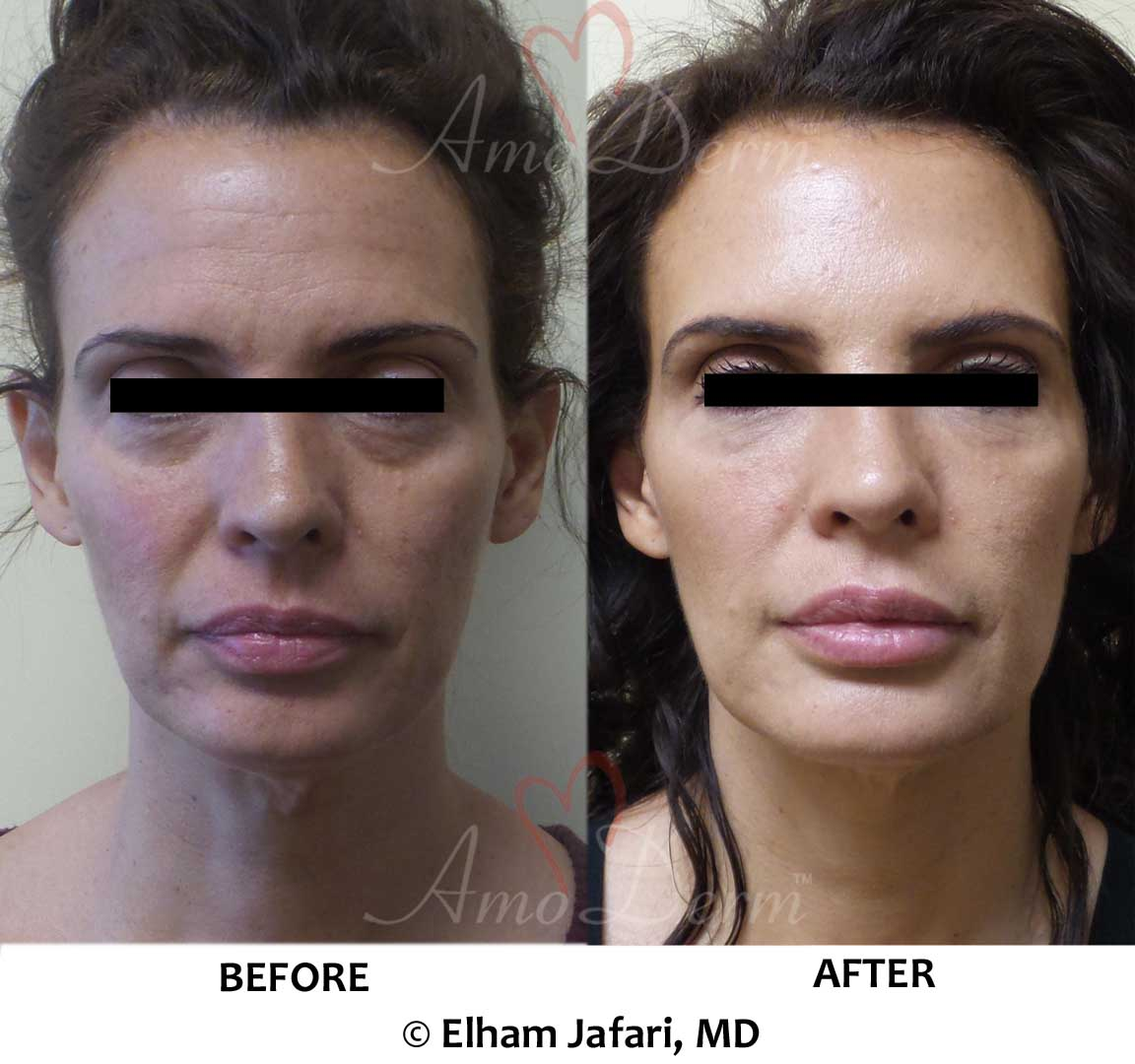 Liquid Facelift with Botox (or Dysport or Xeomin) in forehead and filler injection in cheeks and under eyes