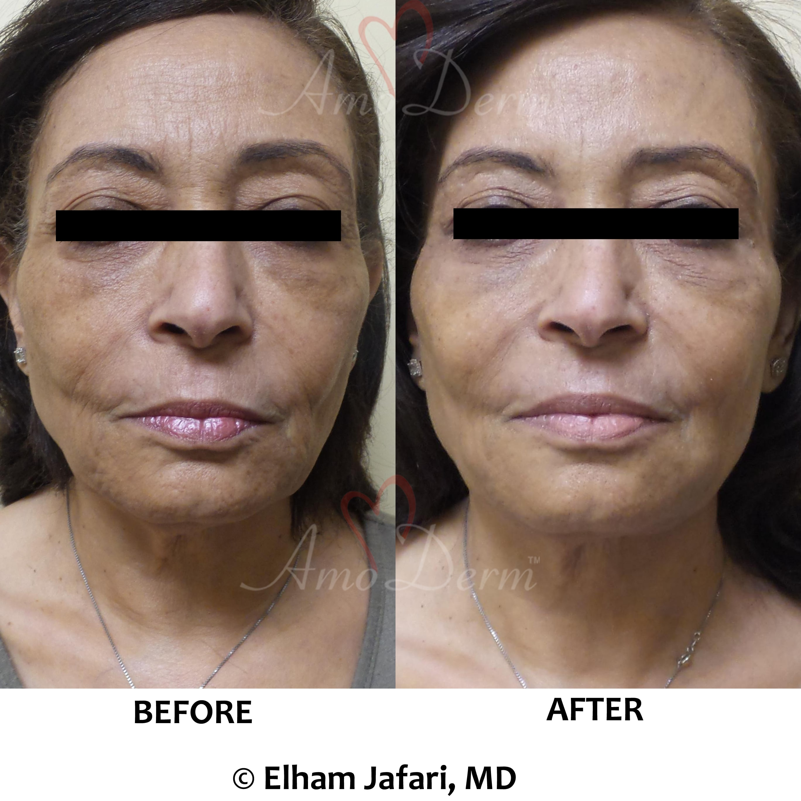 Liquid Facelift in forehead, crow's feet & frown lines & filler in cheeks, nasolabial folds & marionette lines