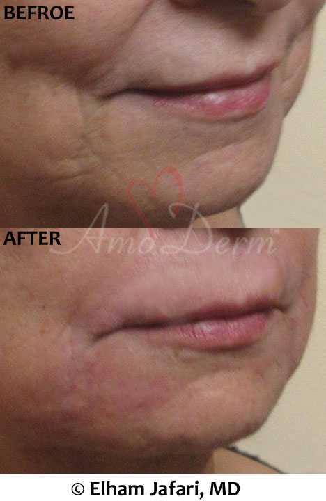 Marionette Line Treatments - before and after picture with real result at Amoderm IRVINE, Orange County