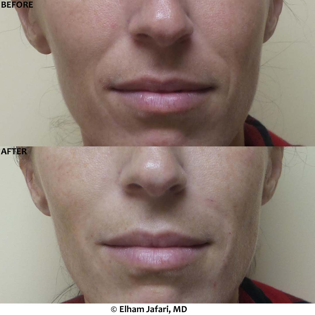 Nasolabial Fold - Before & After Gallery Real Results at Amoderm