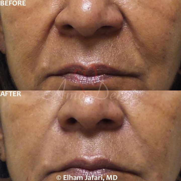 Treatment of nasolabial folds (laugh lines) as part of non-surgical facelift (AKA Liquid Facelift)