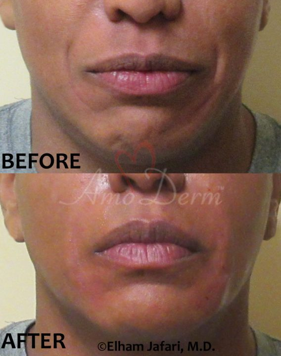 Nasolabial Folds Juvederm