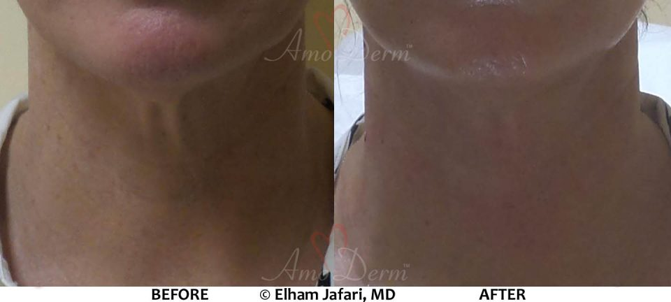 Neck Rejuvenation - Before & After Gallery Real Results at Amoderm