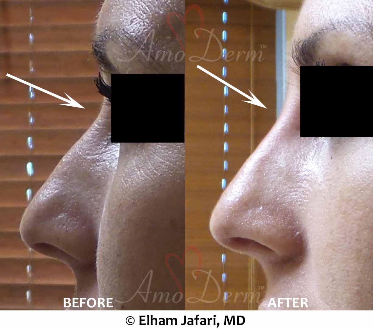Nonsurgical Nose Job N1