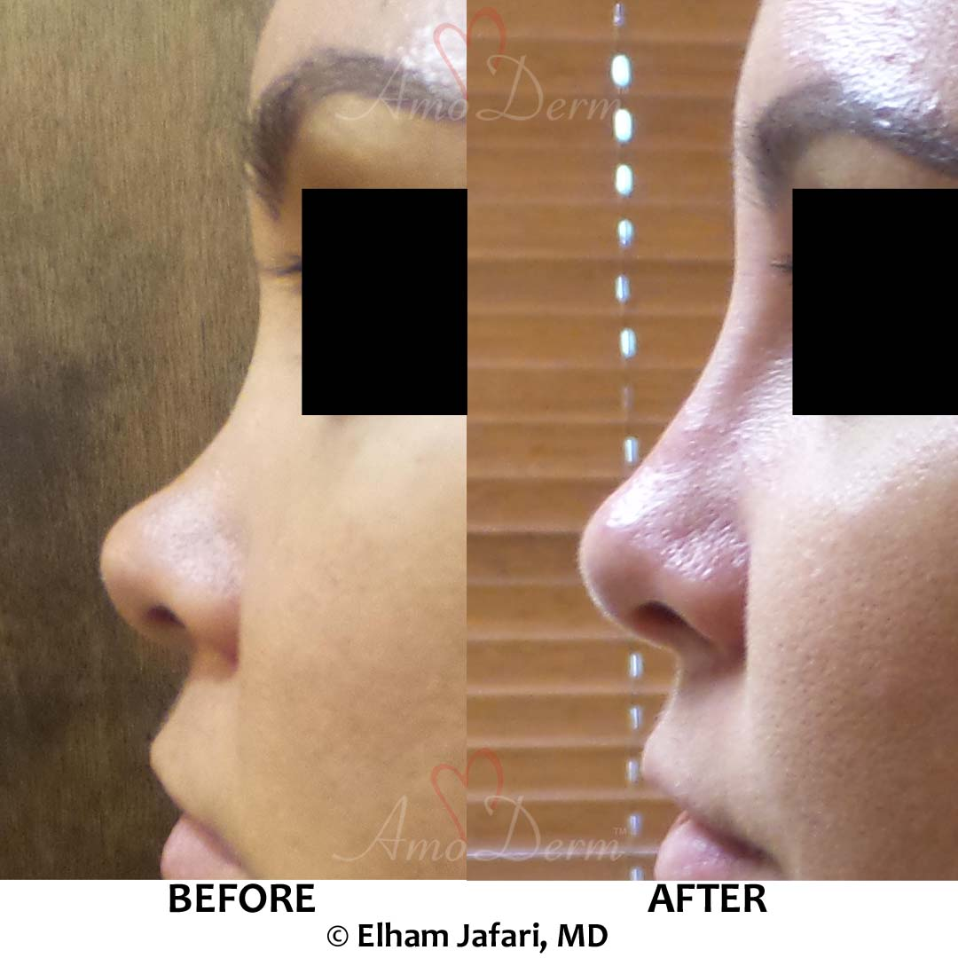 Nonsurgical Nose Job: Before & After Gallery from Amoderm