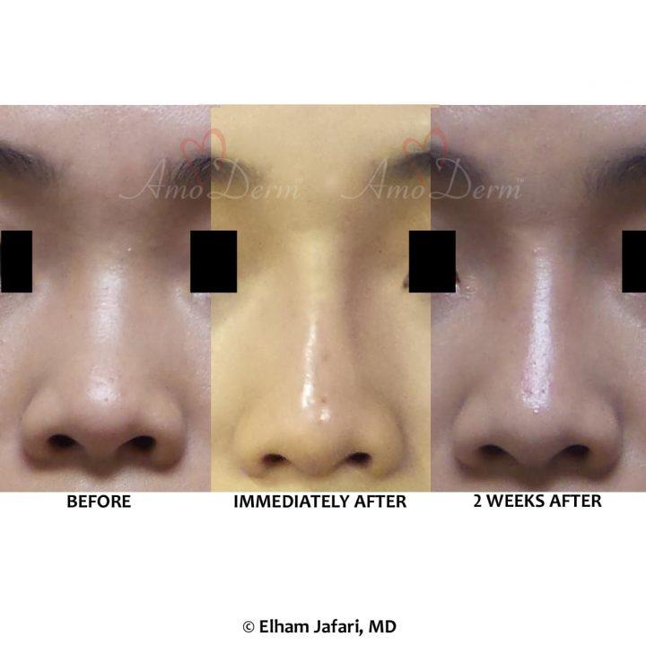 Nonsurgical Nose Job Liquid Rhinoplasty
