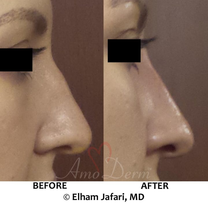 Nonsurgical nose job (liquid rhinoplasty)