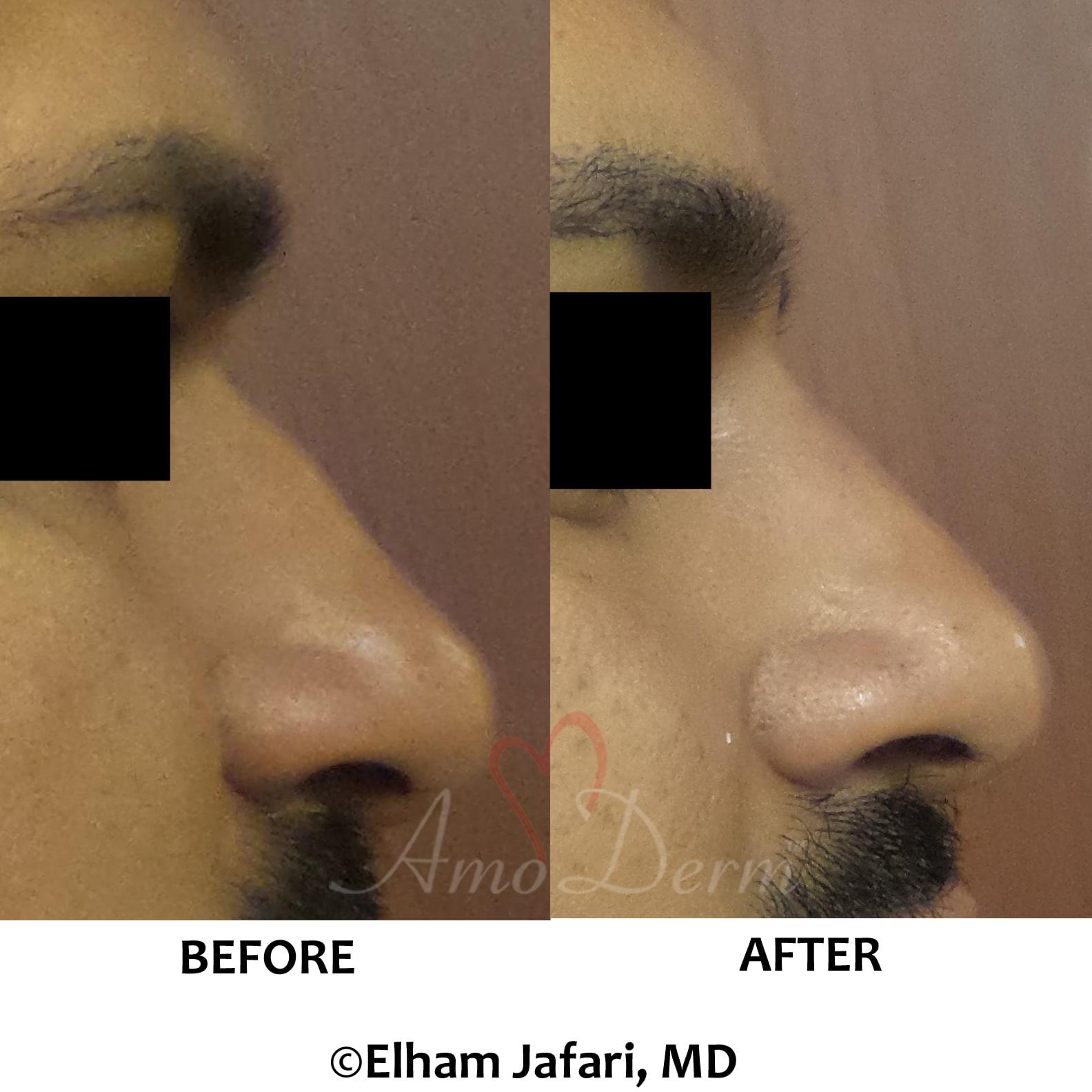 Nonsurgical nose job (liquid rhinoplasty)