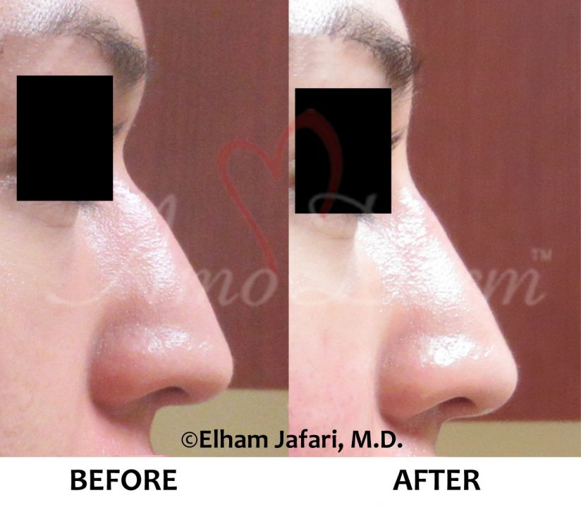 Nonsurgical Nose Job