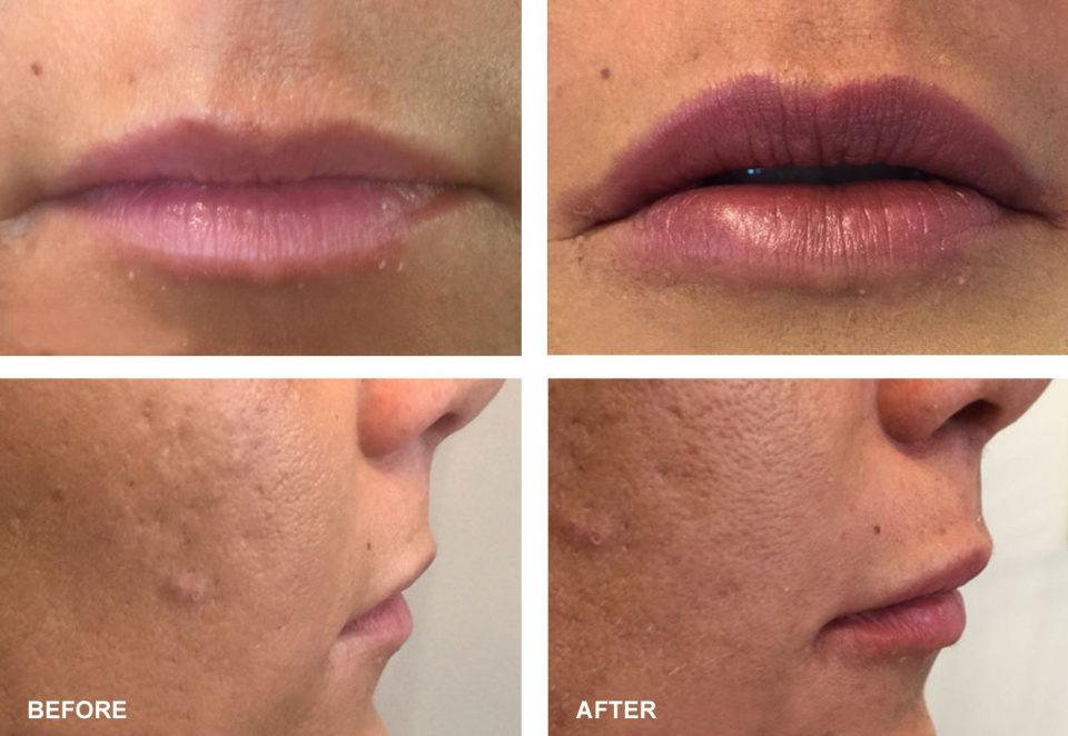 PDO Threading Lip Augmentation