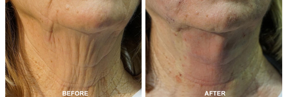 PDO Threading and Neck Rejuvenation