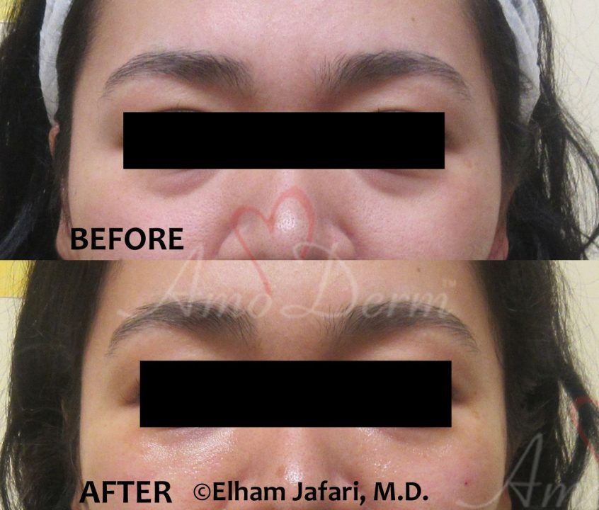 Restylane Under Eyes - Amoderm Cosmetic Treatments