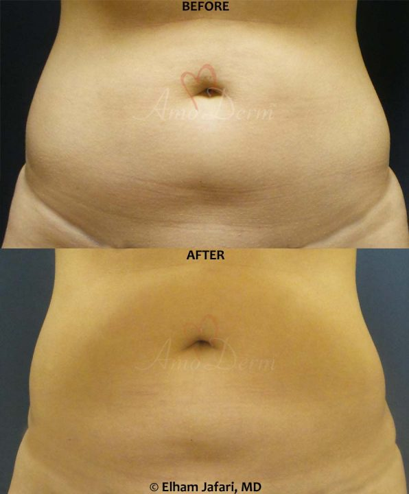 SculpSure: Before & After Gallery from Amoderm