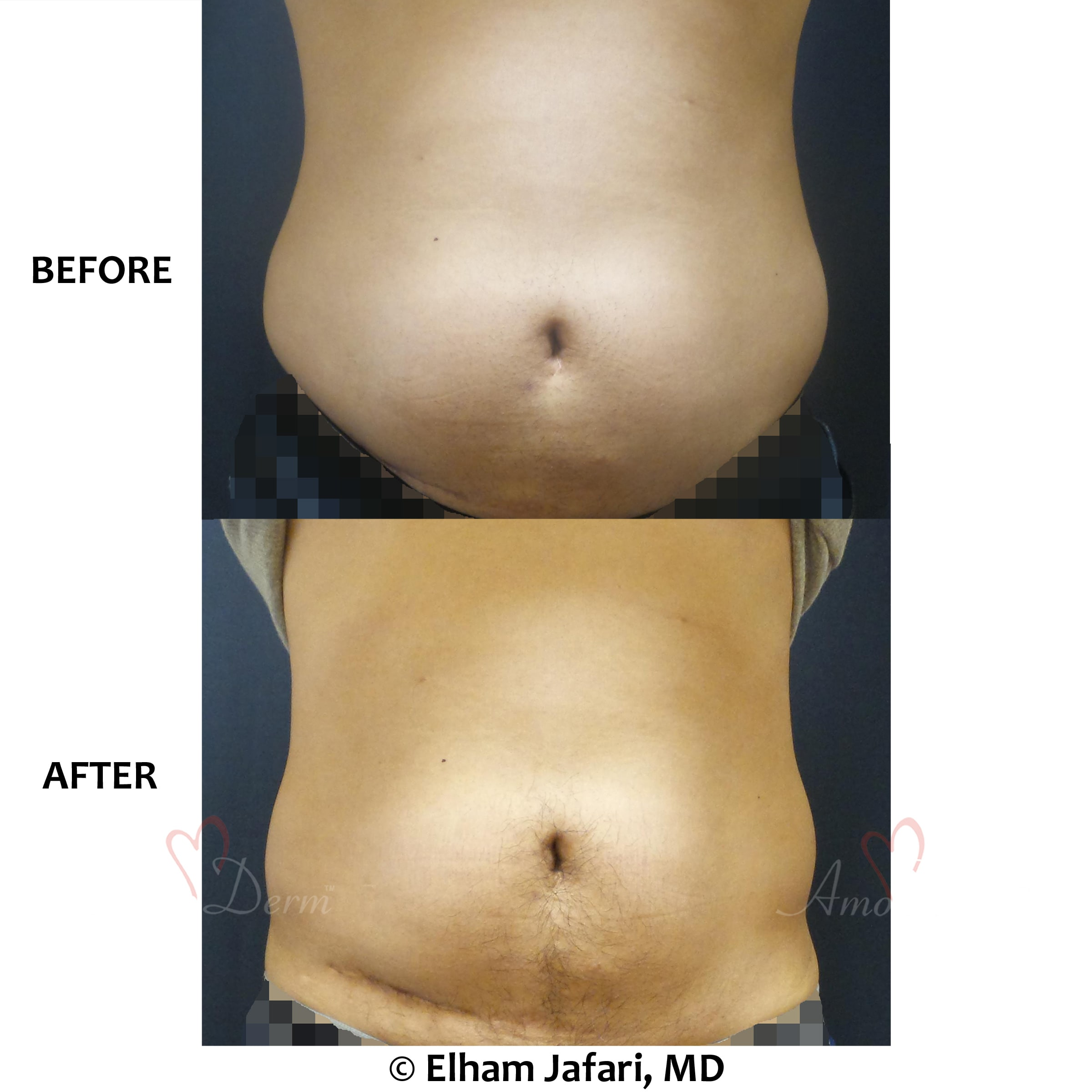 SculpSure Stubborn Fat Reduction