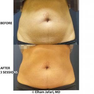 SculpSure Stubborn Fat Reduction
