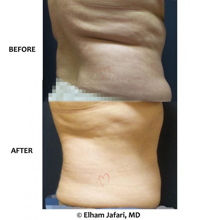 Non-surgical removal of stubborn fat in back and bra bulge with SculpSure
