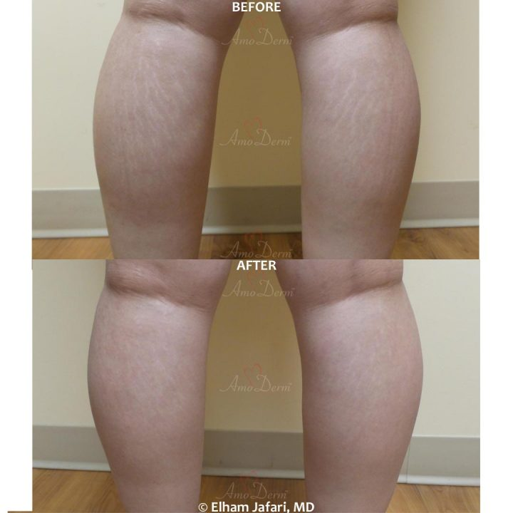 Stretch Marks - Before & After Gallery Real Results at Amoderm