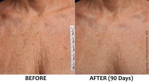 Ultherapy decolletage wrinkles lines chest