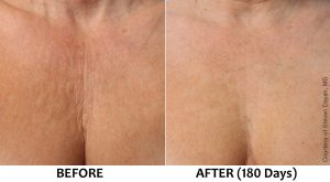 Wrinkles and lines on chest and décolletage area