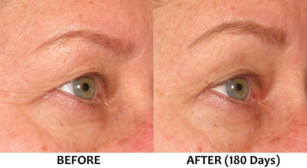 Dropped and lowered eyebrows (non-surgical brow lift)