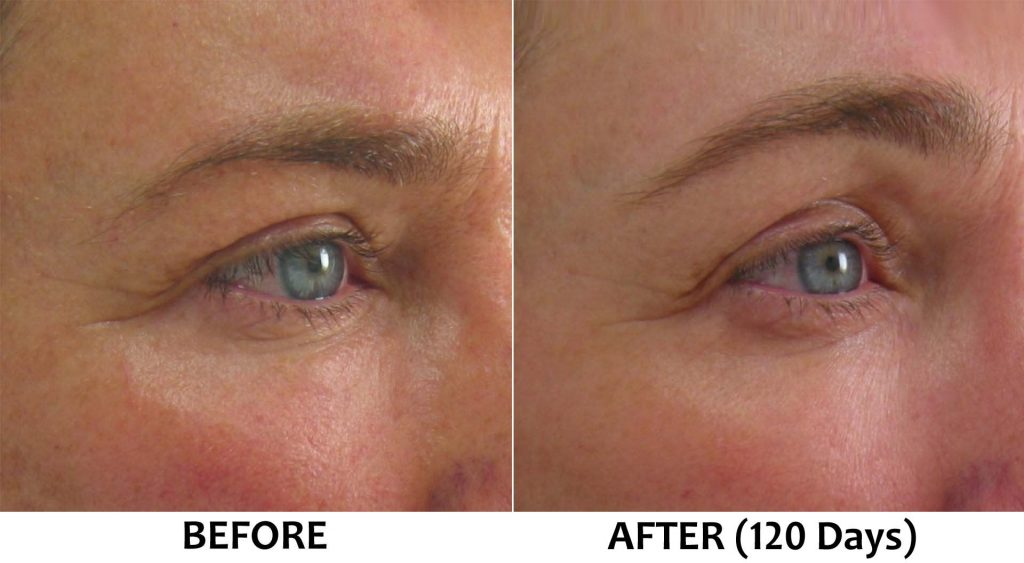 Before-After Picture for Cosmetic Treatments with Ultherapy