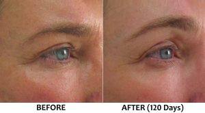 Ultherapy non surgical brow lift dropped lowered eyebrows