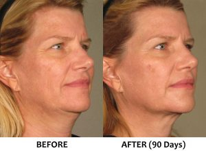 Ultherapy non surgical face lift FullFace