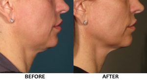 Ultherapy non surgical face lift LowerFace