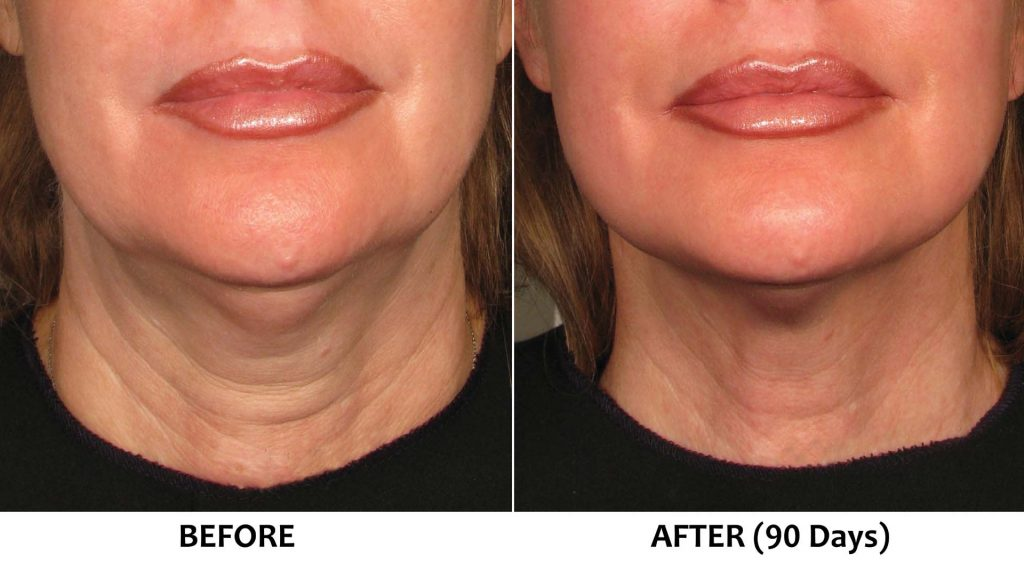 Saggy skin in lower face and jawline (Non-surgical jaw lift)
