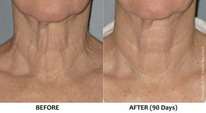 Loose and sagging skin on neck (non-surgical neck lift)
