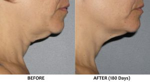 Loose and sagging skin under the chin (sub-mental area)