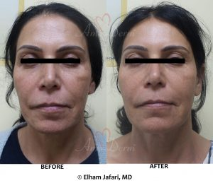 Chemical Peel (VI Peel) for skin rejuvenation and treatment of fine lines and skin pigmentation (dark or brown spots)