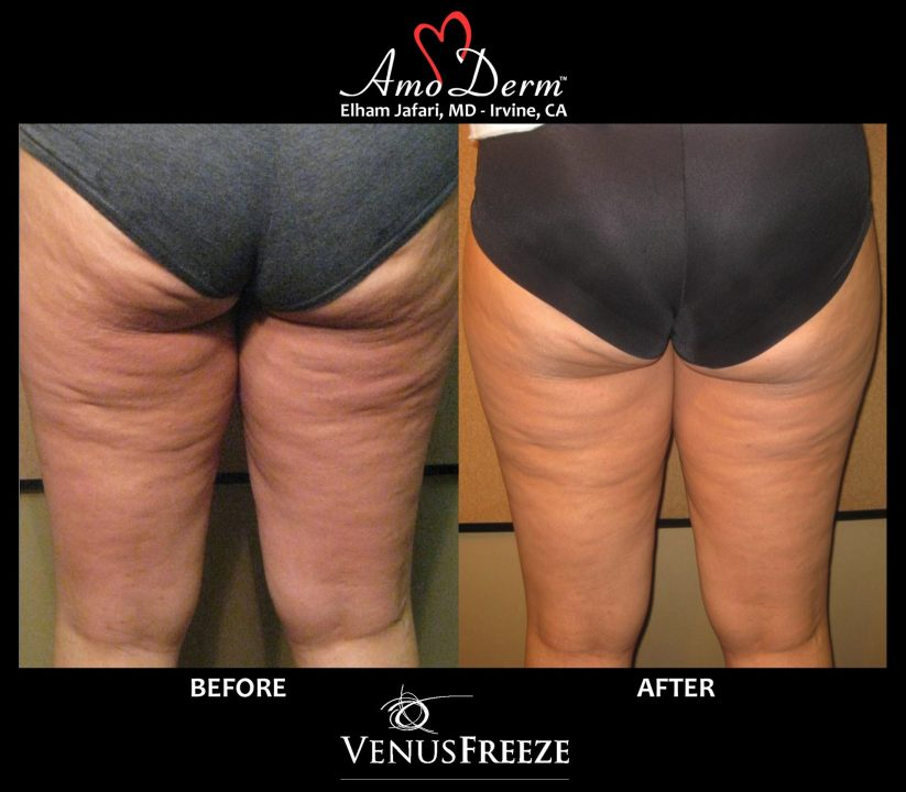 Body Contouring and Cellulite Treatment